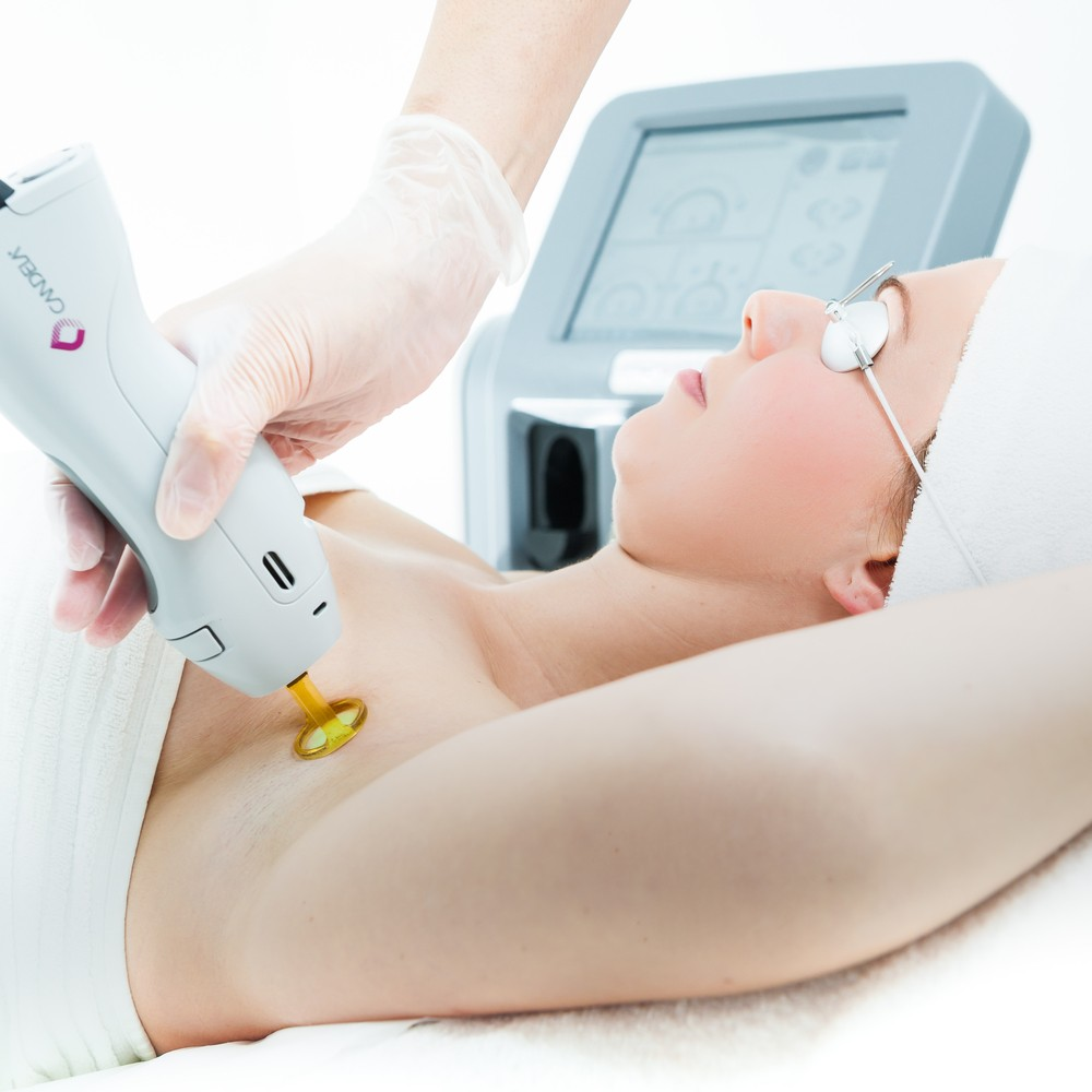 how to prepare for laser hair removal consultation