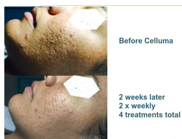 LED Treatment Acne